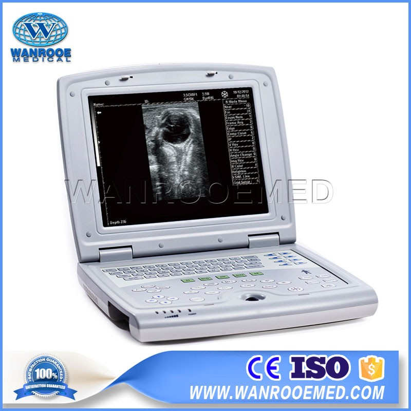 USKX5000 Laptop Vet Handheld Ultrasound Scanner For Dog And Cat Pregnancy Check
