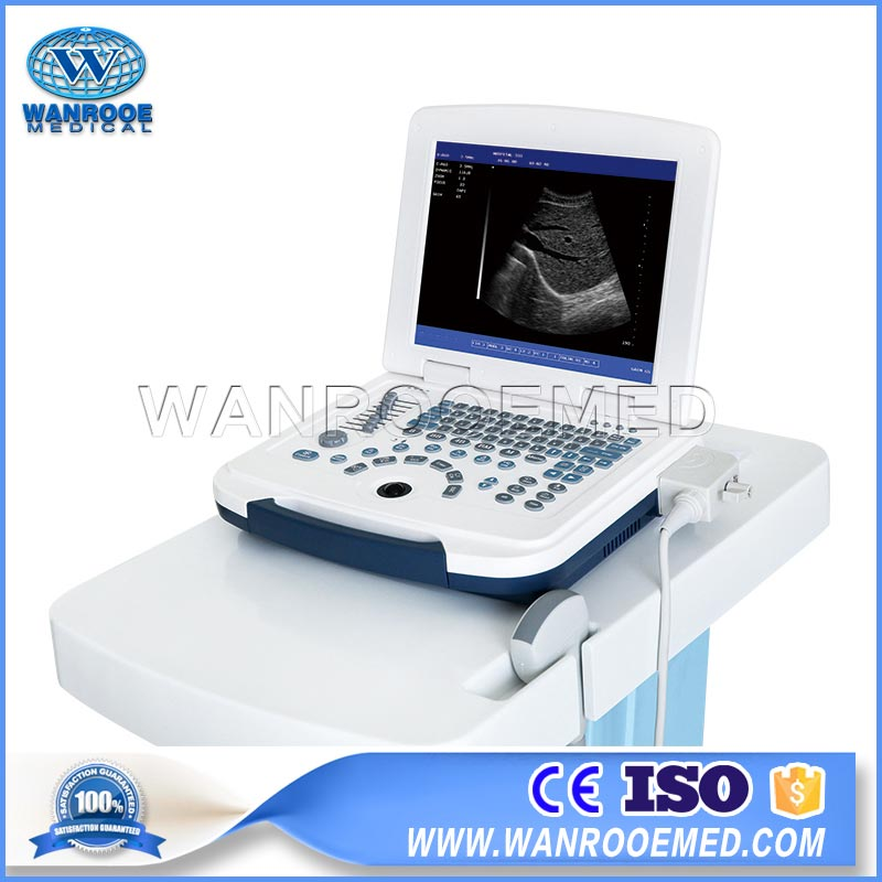US580 Portable Diagnostic Ultrasound Laptop Ultrasound Scanner For Pregnancy