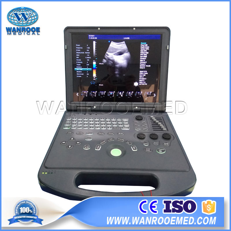 USC60 Hospital Color Doppler Portable Laptop Ultrasound Scanner